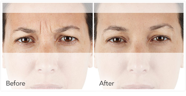 Xeomin, Botox and Dysport are cosmetic injectable to reduce wrinkles