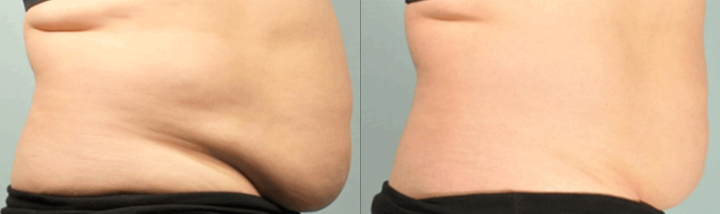 Egea Spa: SculpSure - Before & After, Abdomen & Love Handles