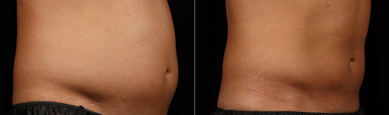 Egea Spa: SculpSure - Before & After, Abdomen & Flanks
