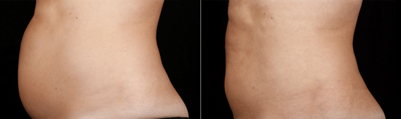Egea Spa: SculpSure - Before & After, Abdomen