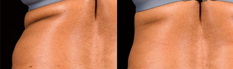 Egea Spa: SculpSure - Before & After, Flanks