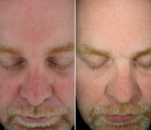 Egea Spa - Advanced Skin Care: HydraFacial - Sun Damaged Before & After Treatment