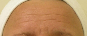 Egea Spa - Advanced Skin Care: HydraFacial - Wrinkles Before Treatment